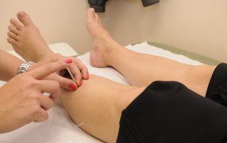 acupuncturist oxford