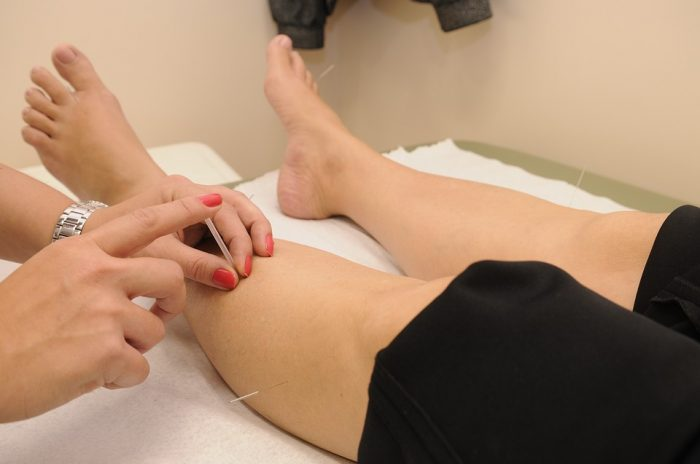Acupuncture in Oxford